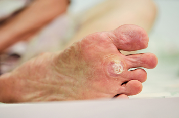 Podiatry Blog Foot Doctor Staten Island Ny 10314